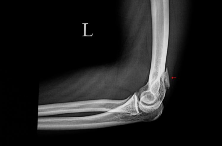 All You Need to Know About Fractured Elbow Treatments in Singapore
