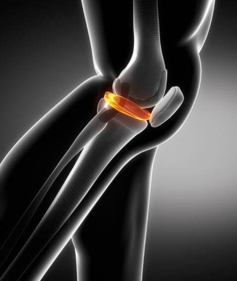 Essential Factors You Need to Know About Torn Meniscus