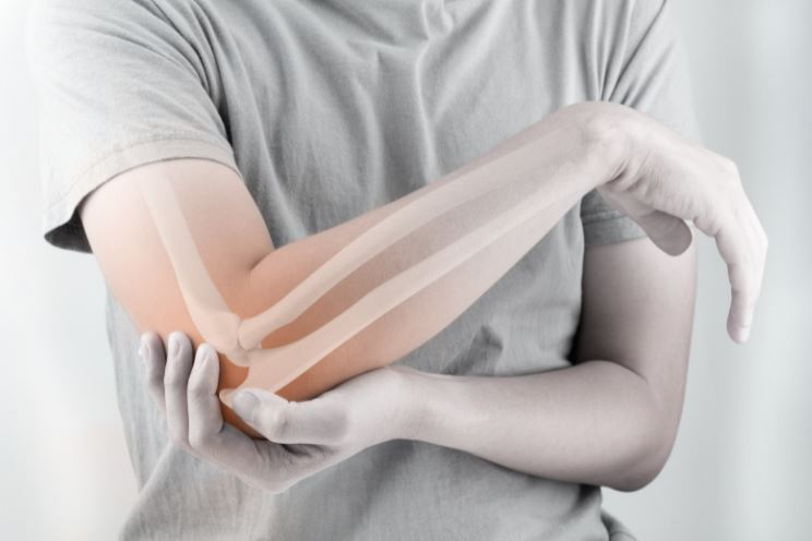 Preferred Treatments for Elbow Fractures in Singapore